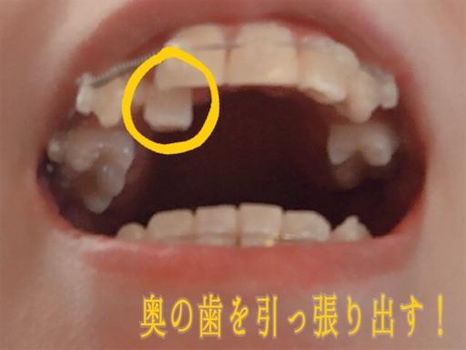 奥の歯を引っ張り出す!