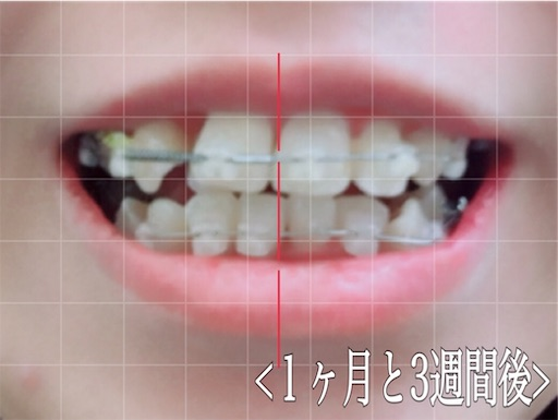 1ヶ月と3週間後。下の歯が並んだ!!!