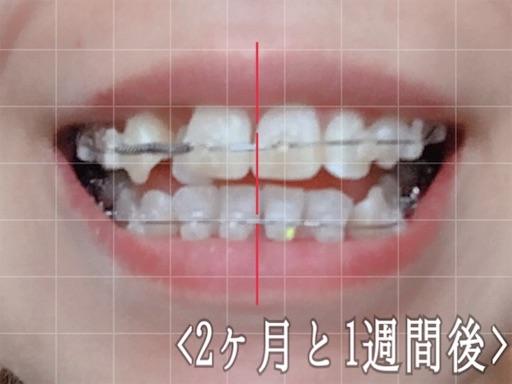 2ヶ月後検診。歯の様子