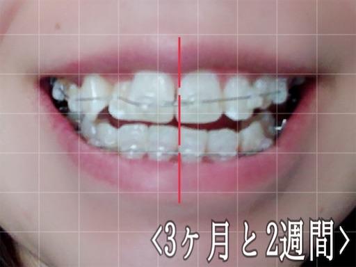 3ヶ月半検診後の歯の様子