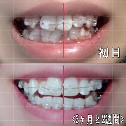 初日との歯の比較