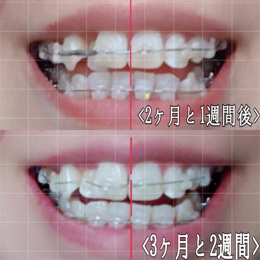 前回との歯の比較