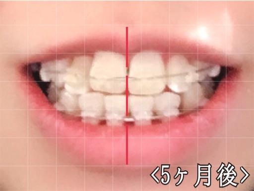 5ヵ月後の様子(歯科矯正)