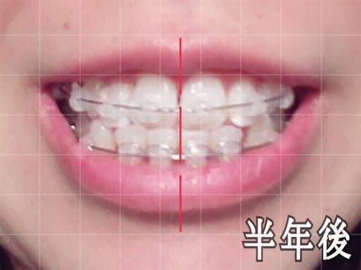 歯科矯正開始から半年後の様子