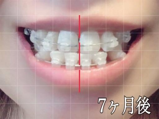 歯科矯正開始から7ヶ月後の様子