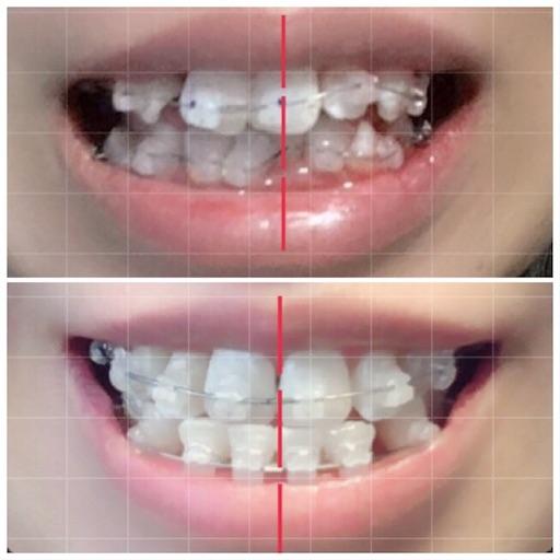 上:歯科矯正初日、下:今回 比較画像