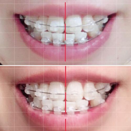 歯科矯正前月との比較