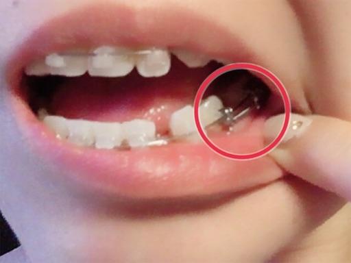 歯の隙間を縮める