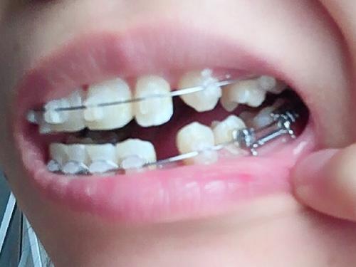 下の歯の隙間