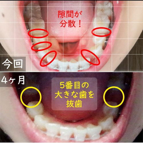 4ヶ月頃と11か月頃の下の歯比較