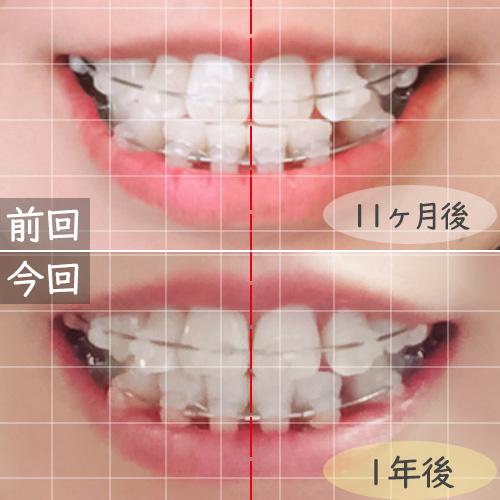 歯科矯正ワイヤー矯正前月比較