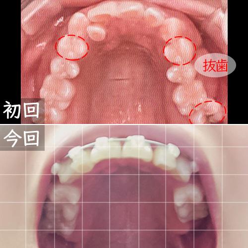 ワイヤー矯正開始と1年後の比較上の歯