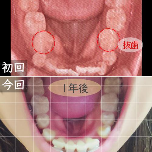 ワイヤー矯正開始と1年後の比較下の歯
