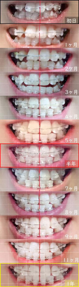 歯科矯正ワイヤー矯正開始から1年間の変化