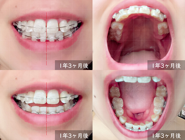 歯科矯正開始から 1年3ヶ月後の様子
