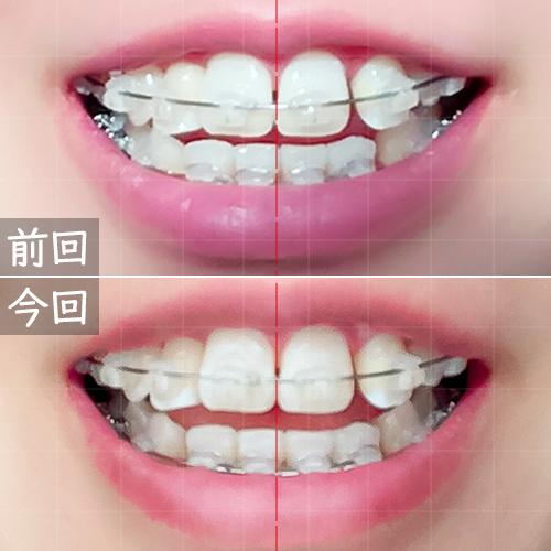 ワイヤー歯科矯正開いた時の前月比較