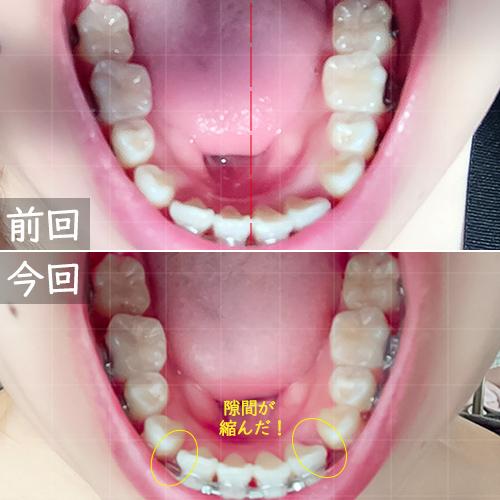 ワイヤー歯科矯下の歯比較