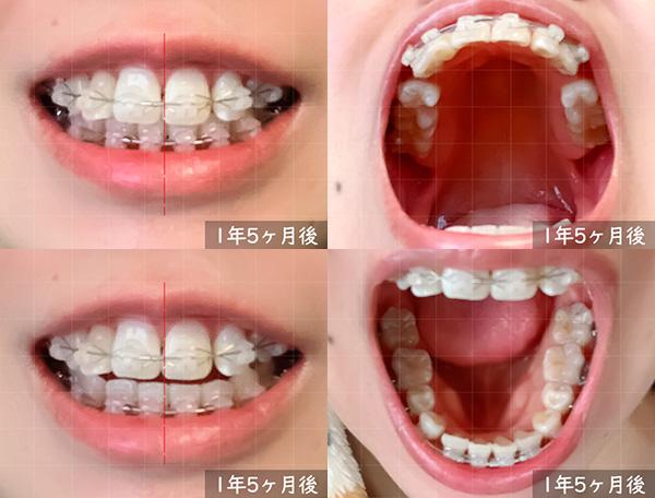 歯科矯正開始から 1年5ヶ月後の様子