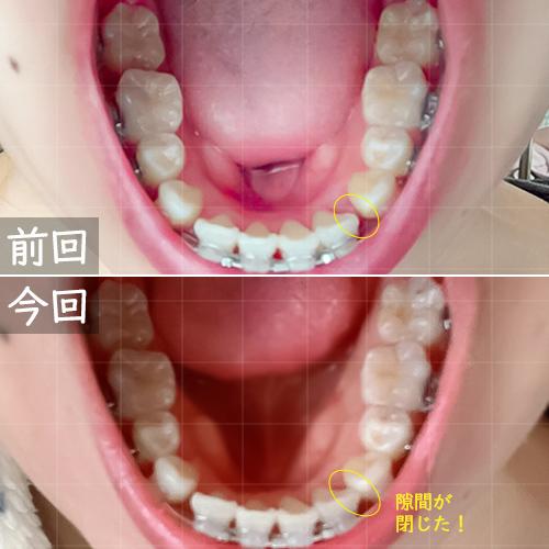 前月との比較下の歯