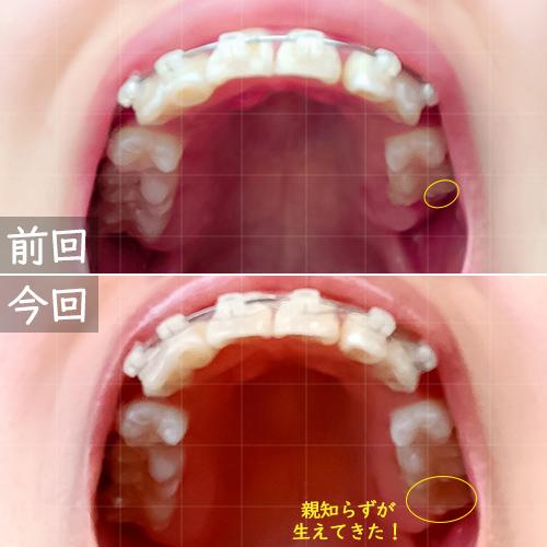 前月との比較上の歯