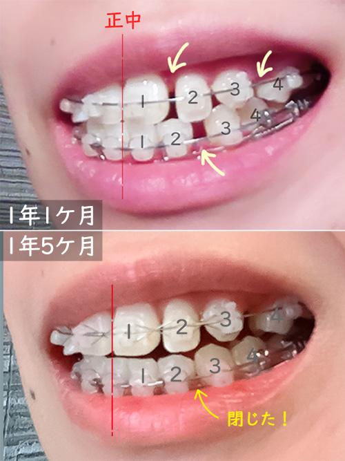 下の歯の隙間が埋まった