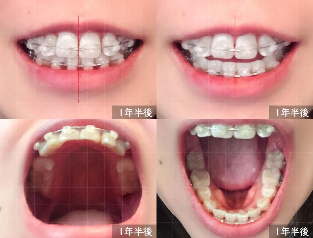 歯科矯正開始から 1年半後の様子