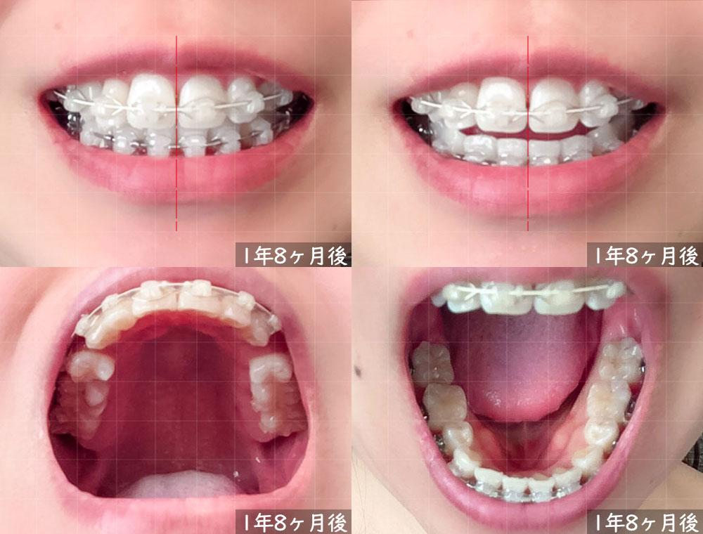 歯科矯正開始から 1年8ヶ月後の様子