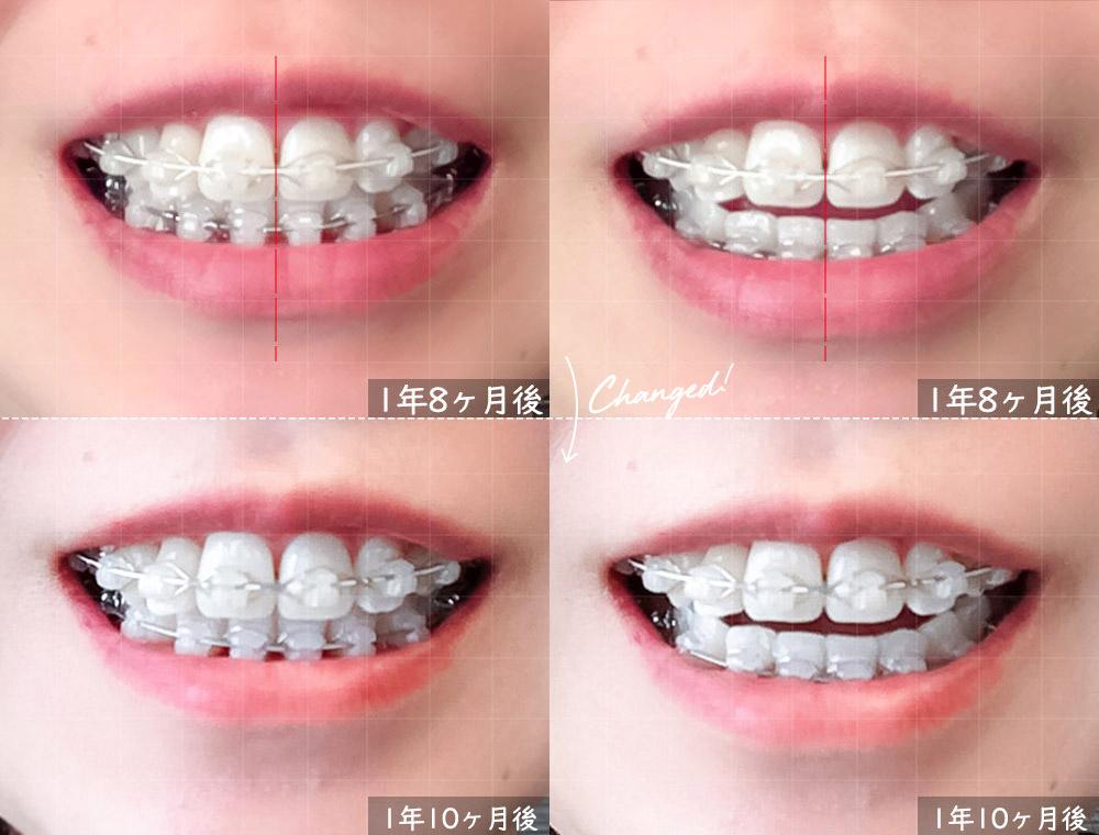 歯科矯正1年8ヶ月後(前回)と1年10ヶ月後(今回)の比較