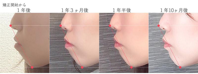 歯科矯正でのEライン(口ゴボ)変化