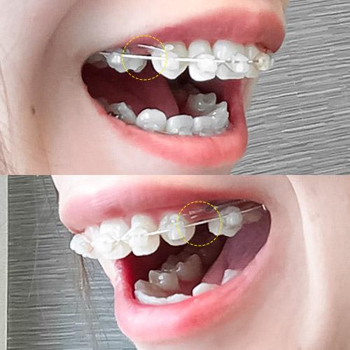 歯科矯正上の歯の隙間を埋める