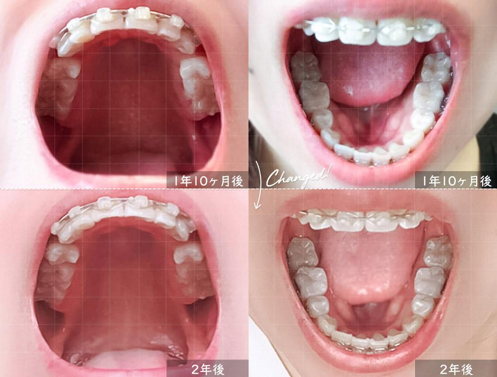 歯科矯正2ヶ月前との奥歯比較