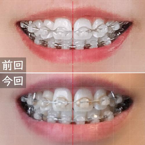 前回よりも歯の重なりが減った