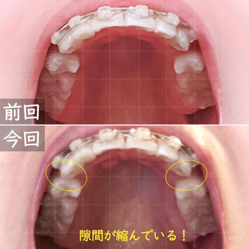 上の歯の隙間