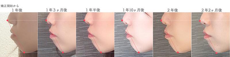 歯科矯正口ゴボ比較