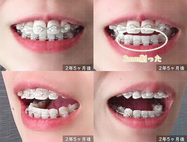 矯正開始から2年5ヶ月 下前歯を削った
