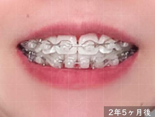 削った下の歯の隙間をゴムで埋める