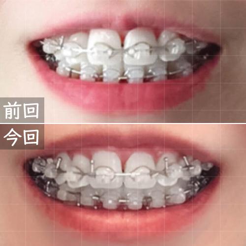 削った歯の比較