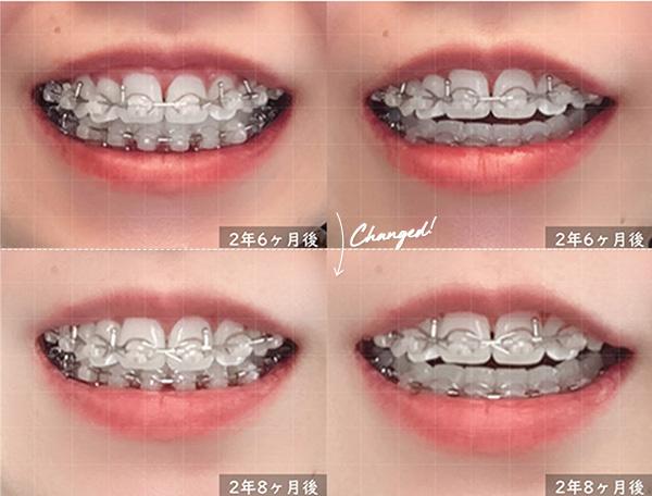 歯科矯正 前回との比較画像