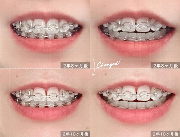大人の歯列矯正2ヶ月前との比較