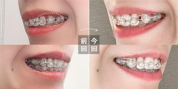 歯科矯正歯の隙間2ヶ月前比較