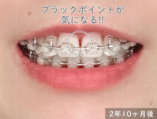 歯科矯正:気になるブラックポイント!
