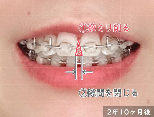 歯科矯正:気になるブラックポイント対処法