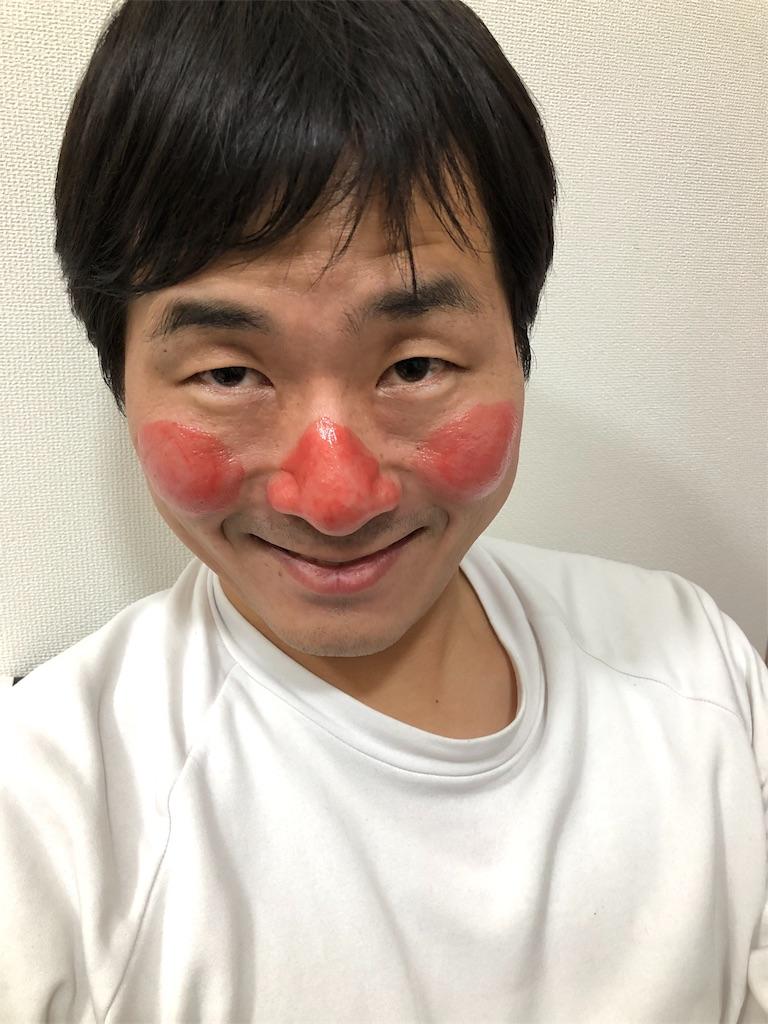 f:id:nattsu1991:20180111011555j:image