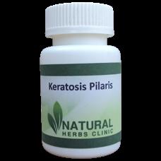 f:id:naturalherbsclinic:20150828145416p:plain
