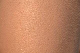 皮膚がピリピリ痛い原因は帯状疱疹かそれ以外の大きい病気かも