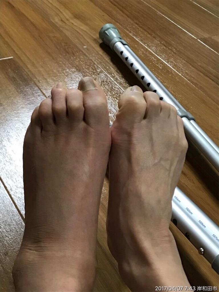 f:id:nekochiyo3:20170407160915j:image