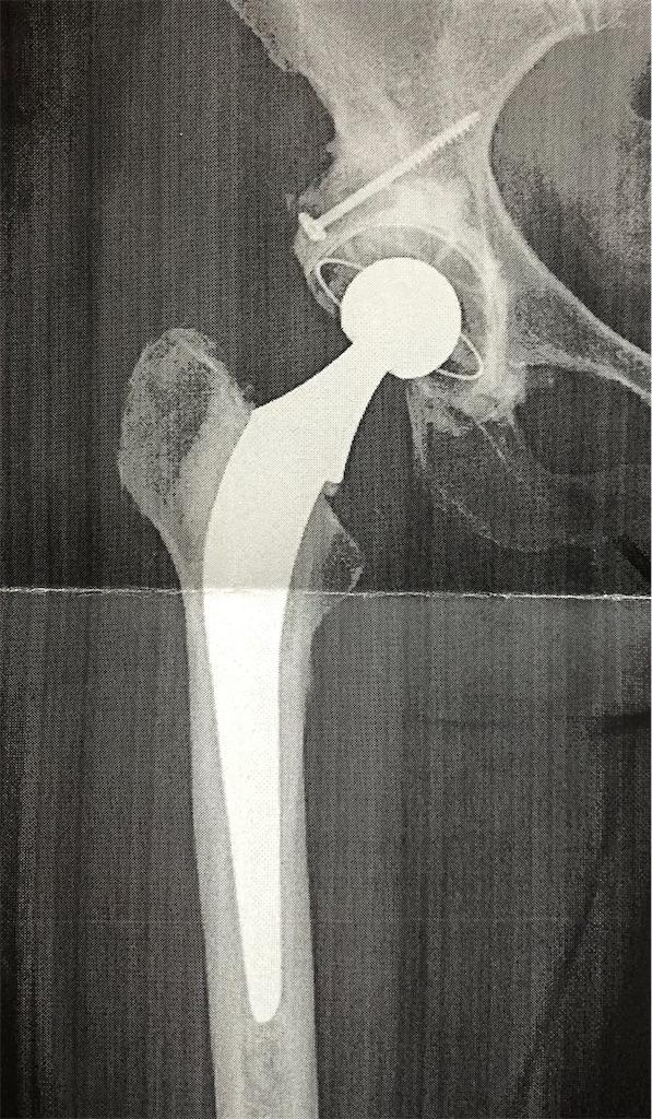 人工関節のレントゲン写真