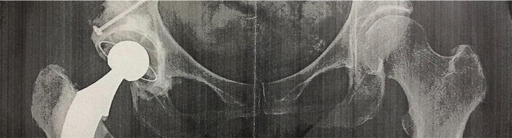 正常な股関節と人工股関節
