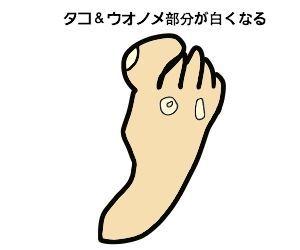 f:id:nekowamegusuri163:20200420143249j:plain