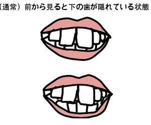 f:id:nekowamegusuri163:20200420143515j:plain